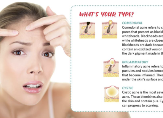 The ABC's of Acne